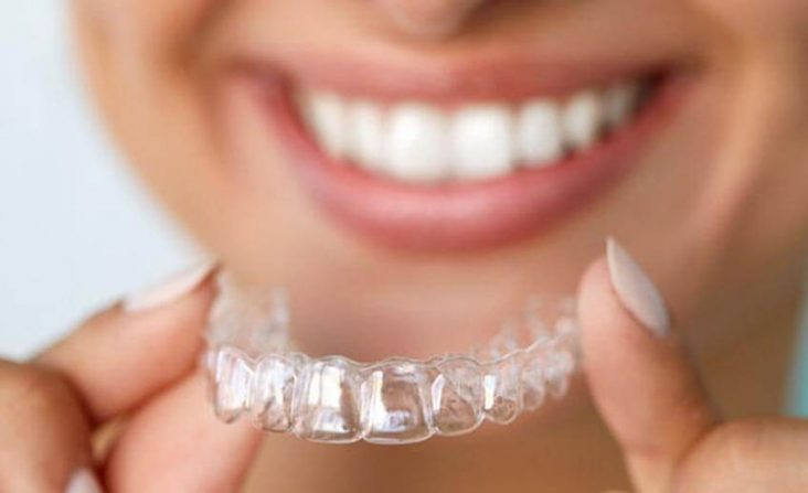 unsichtbare Zahnspange Unterföhring