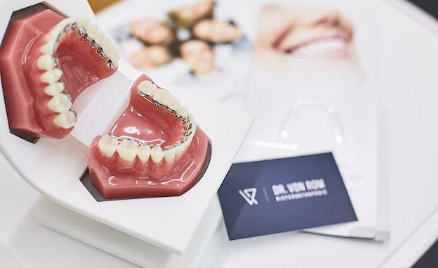Linguale Zahnspangen