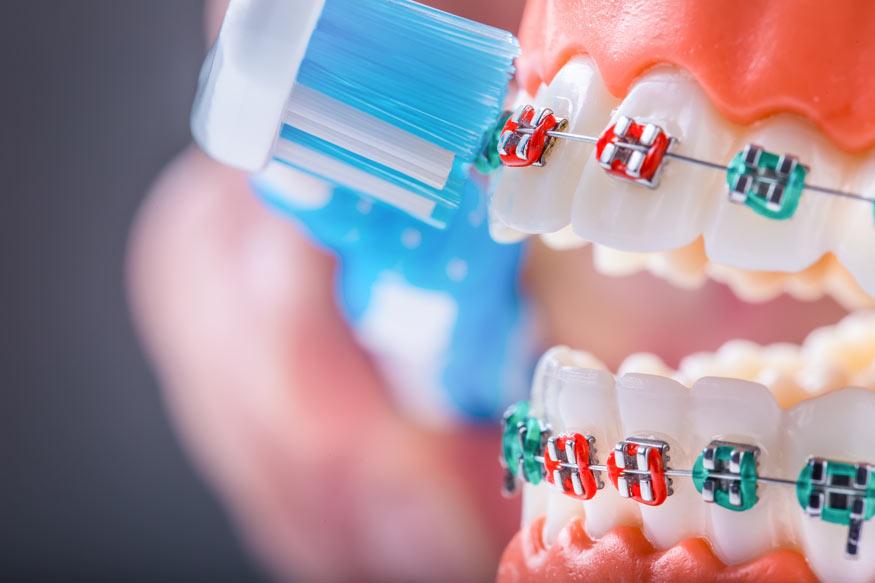 Richtige Pflege einer festen Zahnspange